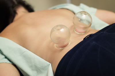 cupping for pain lockport